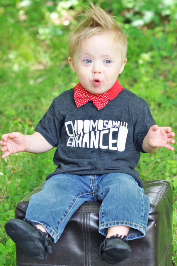 The REAL Truth About Life With Down Syndrome